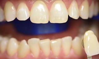 Отбеливание зубов: до (рис. 1)