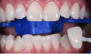 Отбеливание зубов: после (рис. 2)