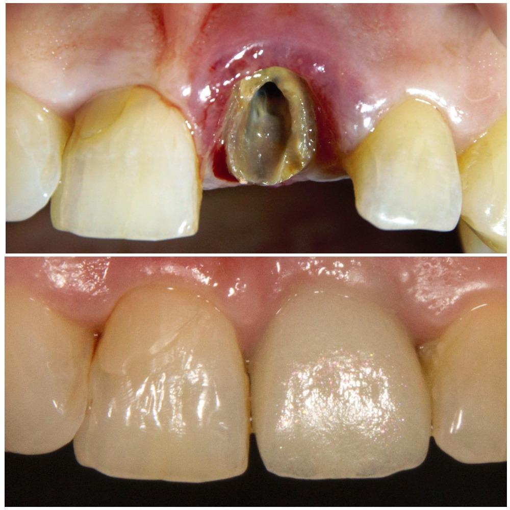 Имплантация зубов: до и после