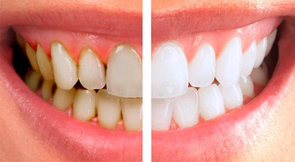 Чистка зубов – до и после