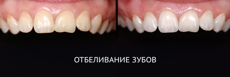 Отбеливание зубов: фото – до и после