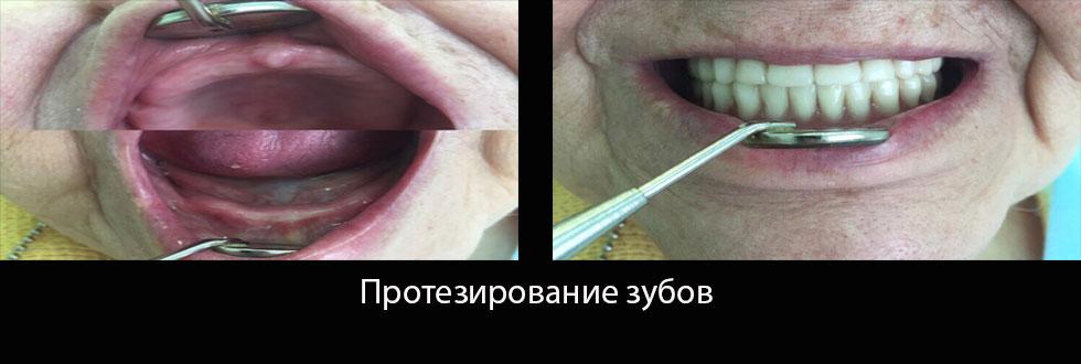 Протезирование зубов: фото – до и после